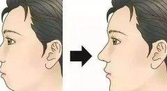 下巴越来越短是牙齿问题吗