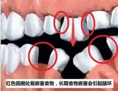 58岁牙齿掉了对身体好不好
