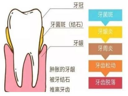 牙结石到牙齿脱落的发展