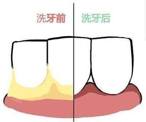洗牙前后有无牙结石的区别