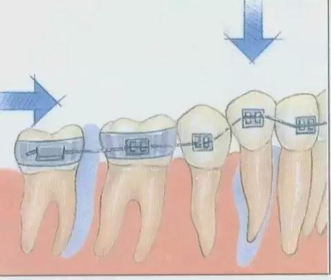 牙齿矫正示意图