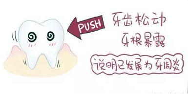 牙周炎造成牙齿松动