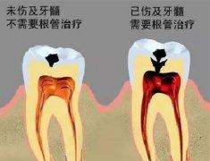 牙齿补了又补?什么时候是个头?