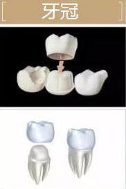 牙冠做法示意图