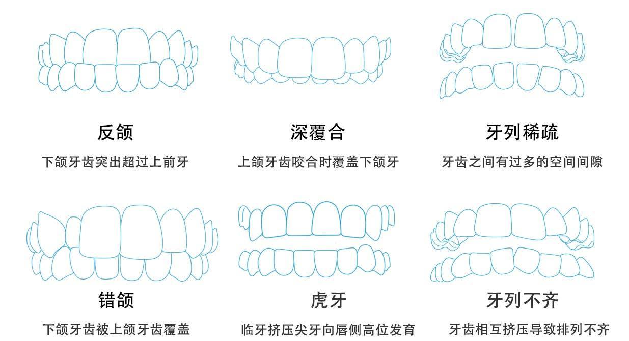 常见的牙齿畸形