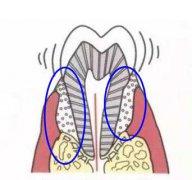 治疗牙周炎,要几千块正常吗