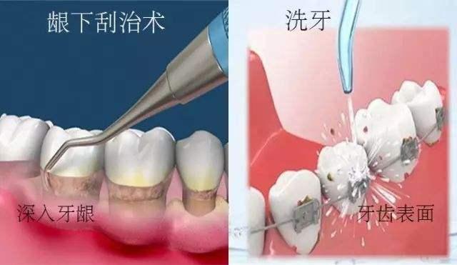 洗牙和龈下刮治