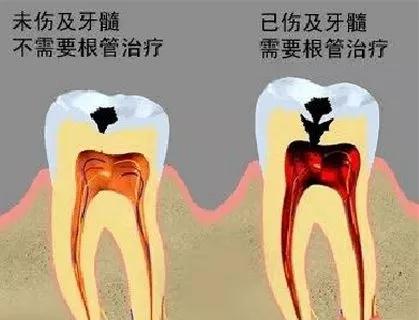 伤及牙髓和未伤及牙髓的示意图