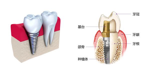 种植牙和真牙的区别