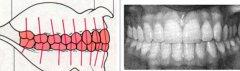 牙齿微龅需要拔牙吗