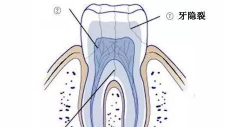 牙隐裂的小裂纹