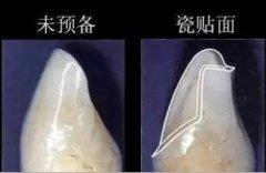 牙齿贴片要磨除多少牙