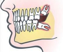 智齿会造成牙齿前凸吗?