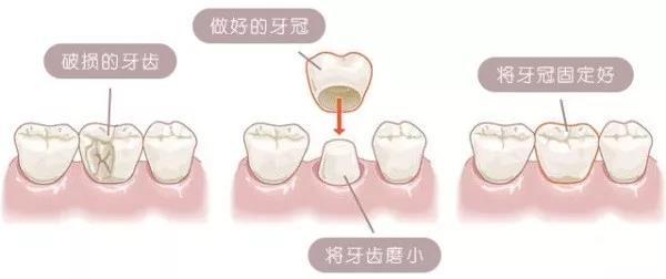 烤瓷牙修复示意图