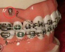 牙齿打骨钉有无危害