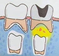 6岁虫牙很痛怎么治疗
