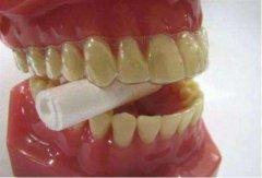 矫治器和牙齿不完全贴合怎么解决