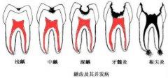 牙齿深龋垫底是什么意思