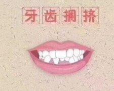 牙齿拥挤带钢丝矫正费用
