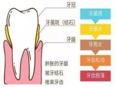 37岁有两颗牙齿松动怎么办