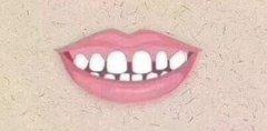 牙齿稀只能箍牙吗?