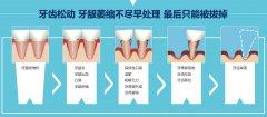 后槽牙牙齿萎缩牙齿松动是怎么回事