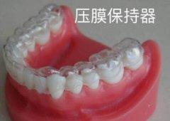 隐形牙套容易反弹吗