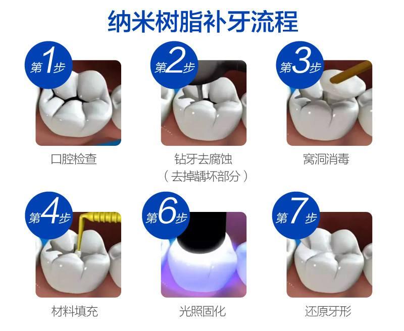 纳米树脂补牙流程