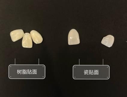 牙齿贴面的两种材料