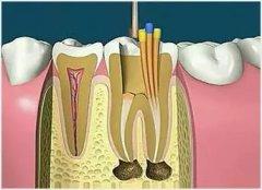 牙齿根充是什么意思