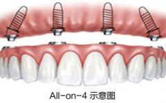 all-on-4种植牙技术目前成熟吗