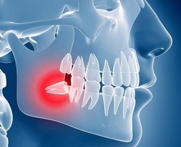 智齿肿痛发炎