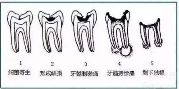 蛀牙发展不同的程度