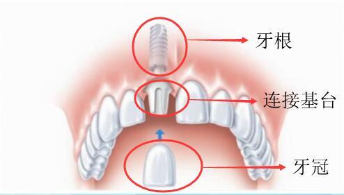 种植牙结构