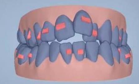 牙齿正畸方案设计