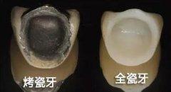 种植牙上部金属冠和全瓷冠的区别