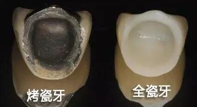 金属烤瓷牙和全瓷牙的外观