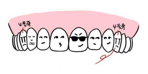 正畸常规拔牙的牙齿