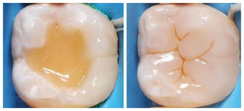 树脂材料补牙