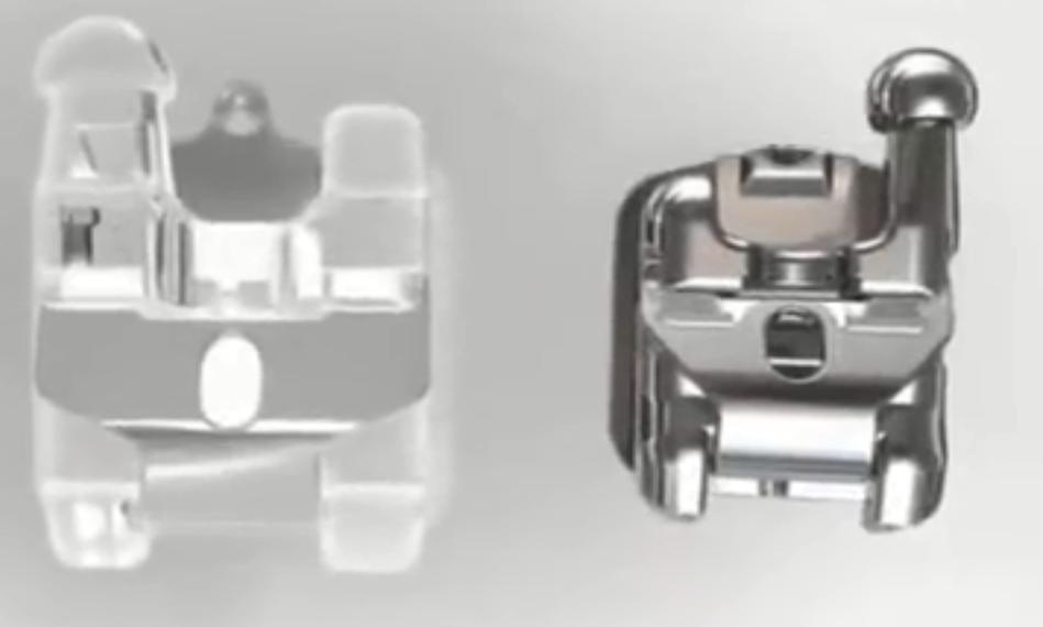 陶瓷和金属自锁托槽细节上的差异