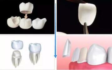 牙冠和贴面磨牙示意图