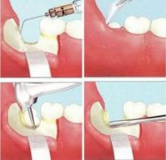 谁拔过牙,是不是用微创拨牙真的不痛?