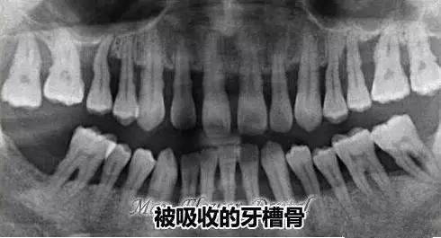 严重的牙槽骨吸收