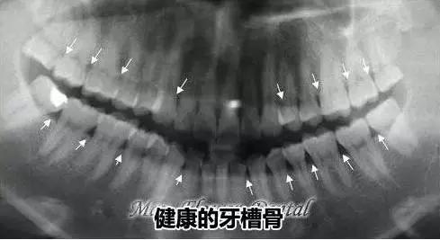 正常的牙槽骨