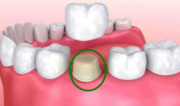 单颗牙齿缺损牙冠修复