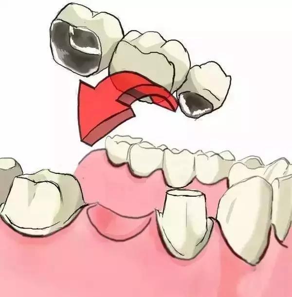 牙齿缺失后牙冠修复