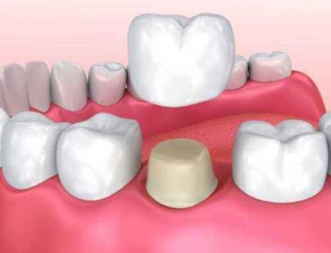 牙冠修复示意图