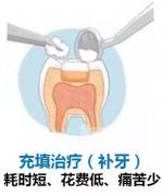 补牙算修复还是治疗?嵌体补牙在医保范围内吗?