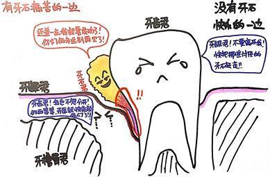 有无牙结石