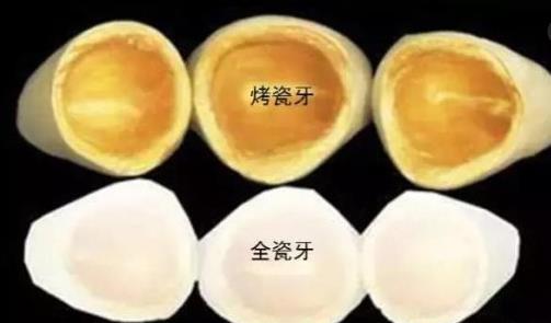 烤瓷牙和全瓷牙内在材料区别